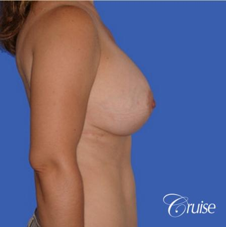 pictures of 42 yr old with breast lift anchor revision -  After Image 3