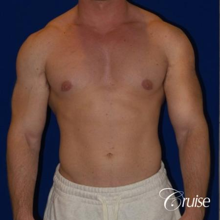 Pictures of young bodybuilder with gynecomastia -  After Image 1