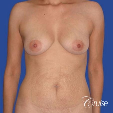 best mommy makeover incisions with saline implants - Before Image 1