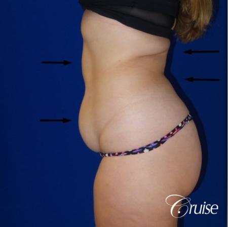 Liposuction Flanks & Abdomen - Before