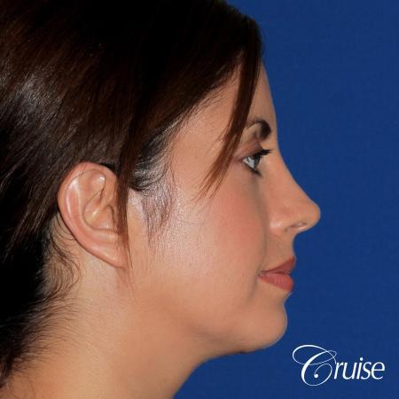 woman with large anatomic chin implant -  After Image 3