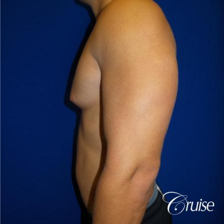 Best before and after gynecomastia pictures - Before and After Image 3