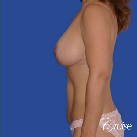 best breast revision tummy tuck mommy make over -  After Image 2