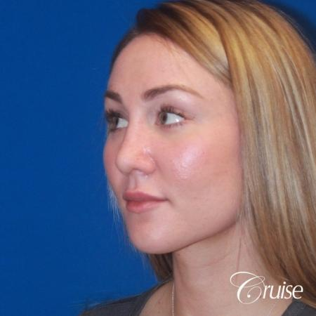 best rhinoplasty with natural results -  After Image 2