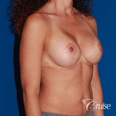 best breast lift revision with high profile silicone 425cc -  After Image 4
