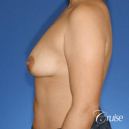 best before and after photos of young breast lift anchor scars - Before Image 2