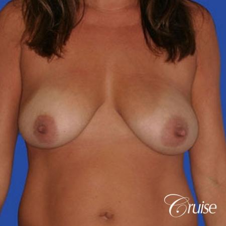 best silicone breast reduction surgery scars - Before Image 1
