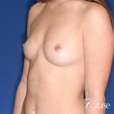 Breast Augmentation: Patient 44 - Before and After Image 3