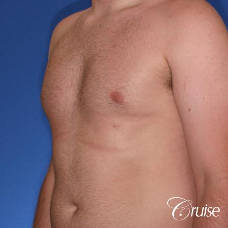 best Puffy nipple correction and gynecomastia on young adult - After Image 3