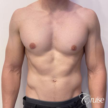 gynecomastia with puffy nipples -  After Image 1