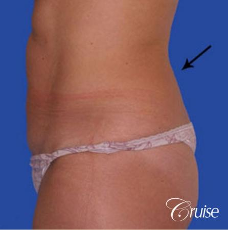 liposuction abdomen flanks with tummy tuck - Before and After Image 2