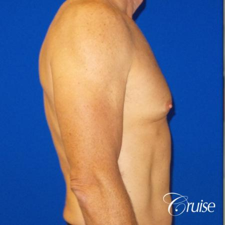 Top Gynecomastia surgeons - Before Image 4