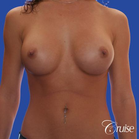 Breast Augmentation - After Image