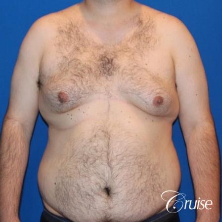 gynecomastia with free nipple graft - Before 1