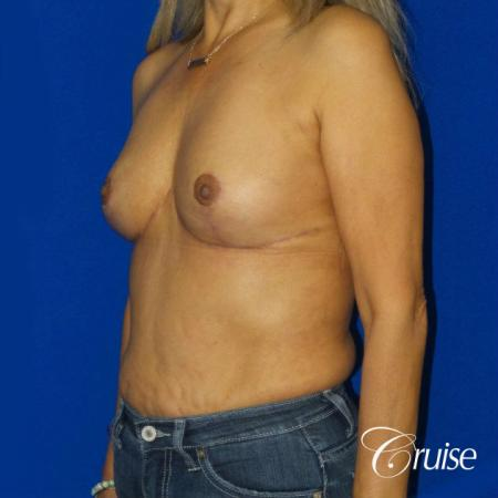 Best Breast reduction results and recovery -  After Image 3