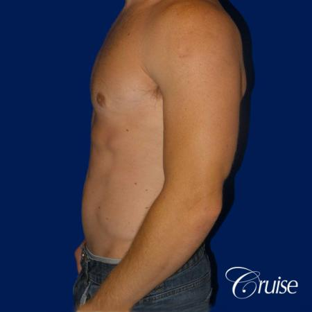 Mild Gynecomastia -Puffy Nipple -Areola Incision - After Image 2