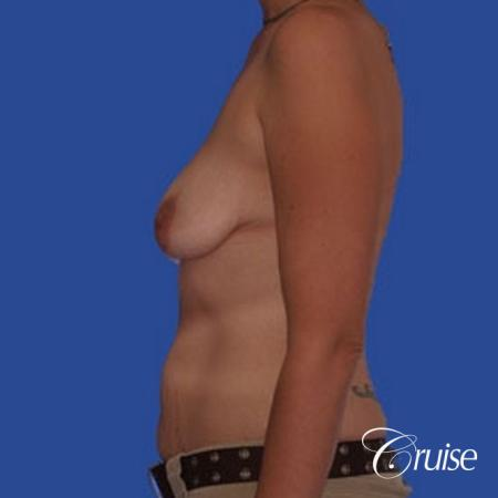 best scar for mommy make over breast lift tummy tuck - Before Image 2