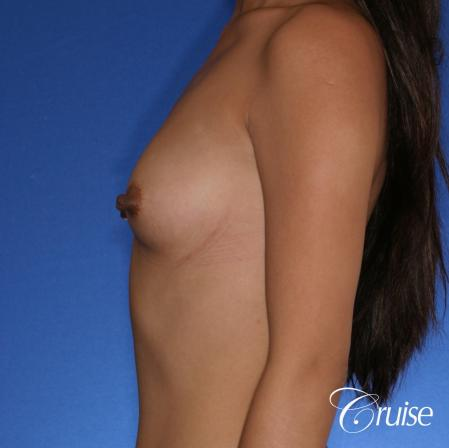 Breast Augmentation - Before 2