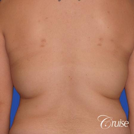best liposuction pictures of flanks and lipo back - Before Image 1