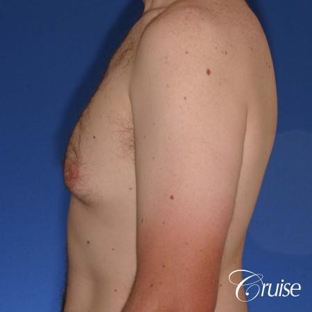 adult male with moderate gynecomastia gets donut lift - Before Image 2