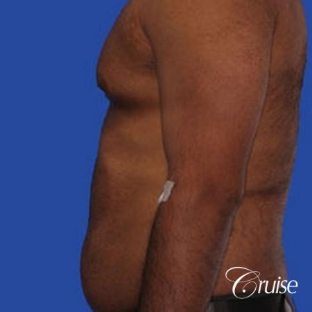 best liposuction abdomen and flanks on a male patient - Before Image 3