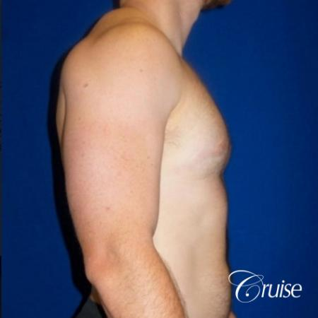 Dr. Cruise gynecomastia surgery photos -  After Image 4