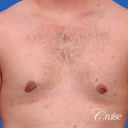 mild gynecomastia with puffy nipple on adult -  After Image 1