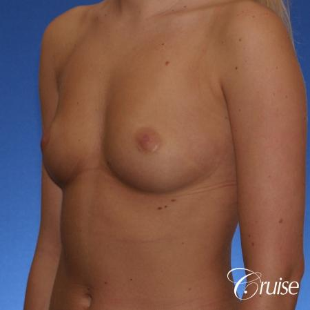 Breast Augmentation - Before and After Image 3