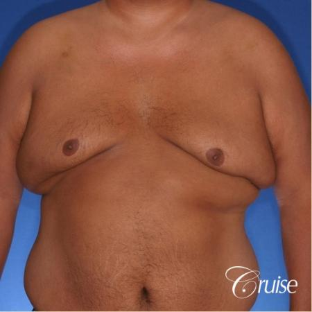 free nipple graft gynecomastia results - Before Image 1