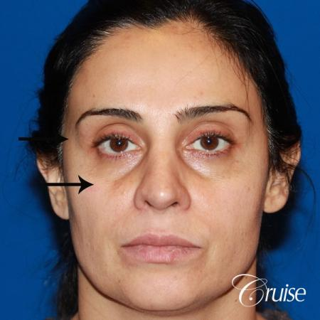 Fat Transfer - Face: Patient 17 - Before Image