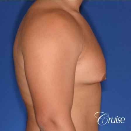 donut lift gynecomastia moderate adult - Before and After Image 3