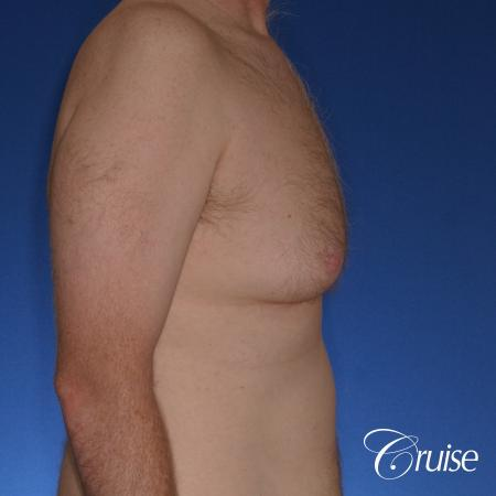 best donut lift with gynecomastia surgery - Before Image 3