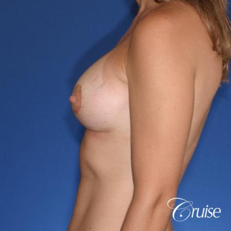 best results for breast lift lollipop with silicone implants -  After Image 2