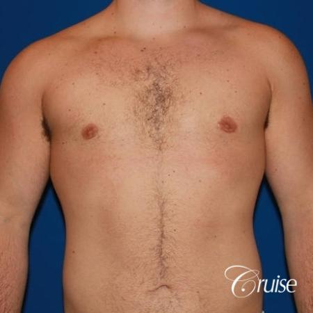 athletic adult with puffy nipple -  After Image 1