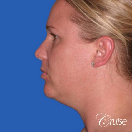 best liposuction neck and jawline for double chin - Before and After Image 2