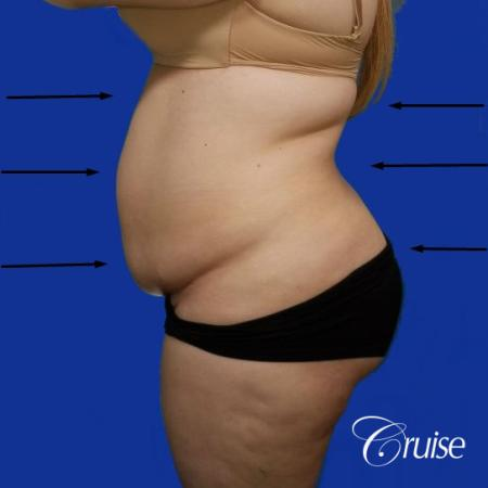 Best liposuction procedures dr cruise - Before Image 2