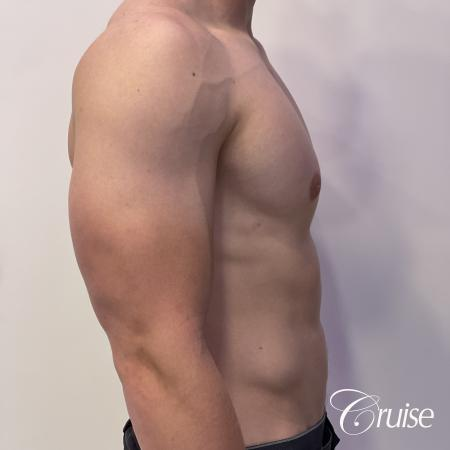 gynecomastia with puffy nipples -  After Image 4