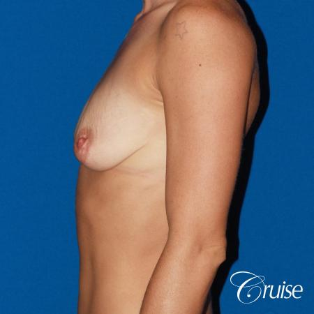 best pictures of young patients with silicone breast lift anchor - Before Image 2