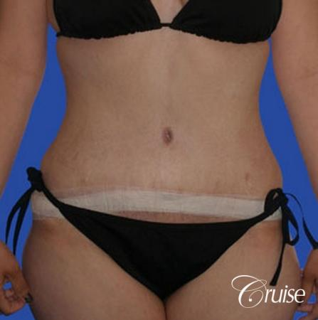 best liposuction tummy tuck -  After Image 1