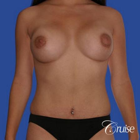 best pictures of low mini tuck and breast augmentation Newport Beach -  After Image 1