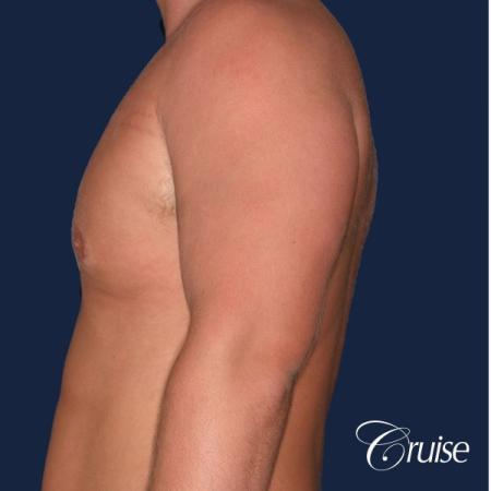 donut lift Gynecomastia correction - Before Image 2