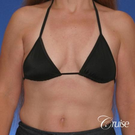 best breast lift donut scars in Newport Beach - Before Image 3