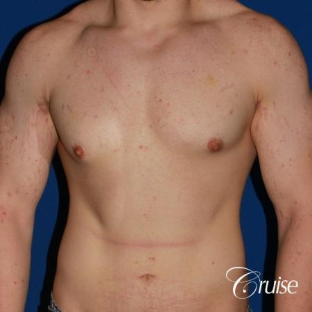 mild-gynecomastia-revision - Before Image 1