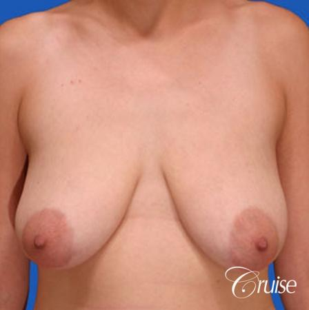 best round saline breast reduction lift surgery - Before Image 1