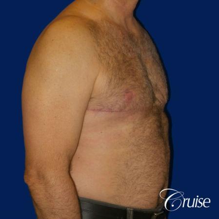 Severe Gynecomastia Correction -  After 2