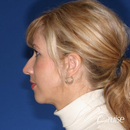 female patient with best chin implant scar - Before Image 2
