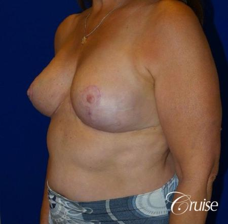 Breast Reduction - No Implants - After Image 3