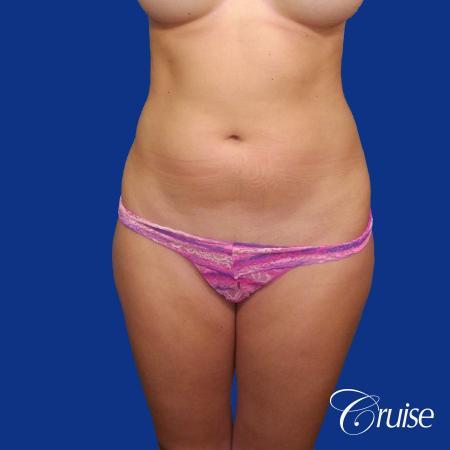 Liposuction - Before Image 1