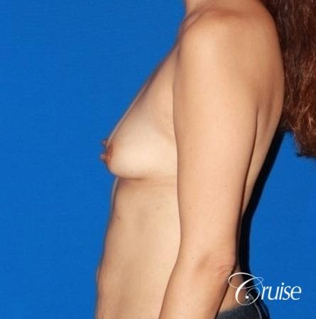 best breast lift anchor with high profile silicone 425cc - Before Image 2