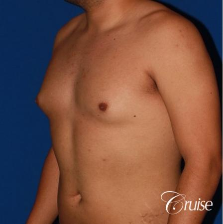 puffy nipple on 26 year old with gynecomastia - Before and After Image 2
